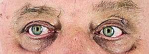 oczy_300